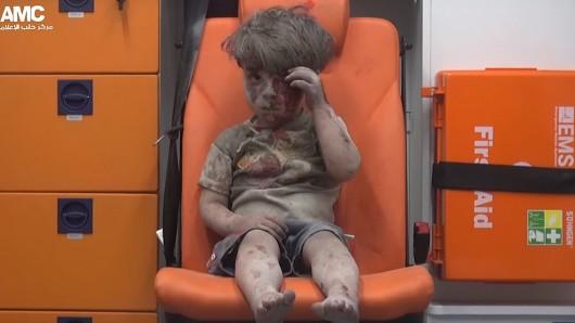 So sieht Krieg aus: Ein vierjähriger Junge sitzt mit blutverschmiertem Gesicht in einem Krankenwagen. Sein Haus in Aleppo wurde kurz zuvor bei einem Luftangriff zerstört.