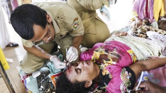 Diese Indonesierin hat das Beben verletzt überlebt.