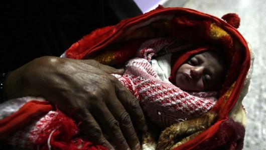 Eine jemenitische Frau hält in Sanaa (Jemen) im Ernährungszentrum eines Krankenhauses ihr Baby im Arm. (Archivbild)