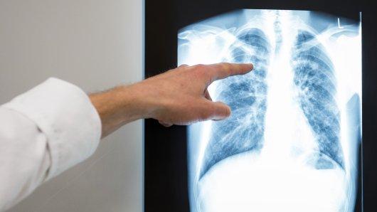 An einer Schule in Wolfsburg ist ein Fall von Tuberkulose aufgetreten. (Symbolbild)