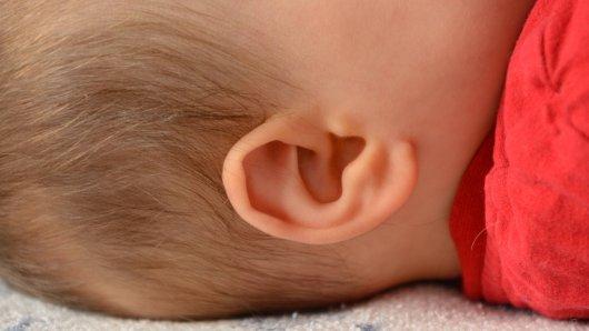Dürfen Eltern ablehnen, dass ihrem gehörlosen Kind ein Hör-Implantat eingesetzt wird? Das Gericht in Goslar sagt: Ja (Symbolbild).