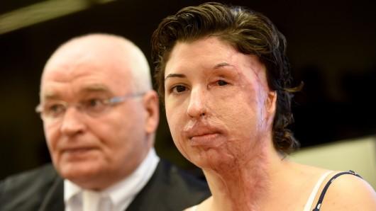 Das Säure-Opfer und Nebenklägerin Vanessa Münstermann sitzt am 25. August 2016 mit ihrem Anwalt Matthias Waldraff im Landgericht in Hannover (Niedersachsen) bei einem Prozeß gegen ihren wegen versuchten Mordes angeklagten Ex-Freund.