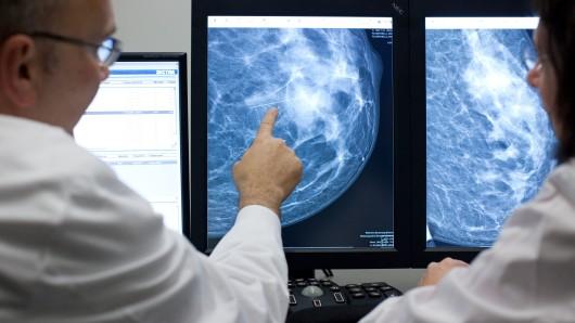 Der Radiologe Dr. Walter Heindel deutet im Referenzzentrum Mammographie am Universitätsklinikum Münster (UKM) auf eine Auffälligkeit in einer weiblichen Brust, dargestellt auf einem Computermonitor.