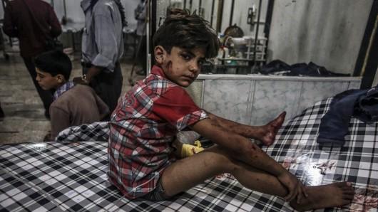 Ein Junge sitzt am 09. Juli 2016 nach einem Luftangriff verletzt auf einem Bett in einem Krankenhaus in Douma, Syrien.