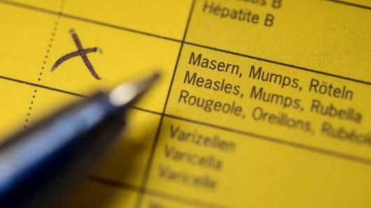 Im Landkreis Peine gibt es inzwischen sieben bestätigte Masern-Fälle (Symbolbild).