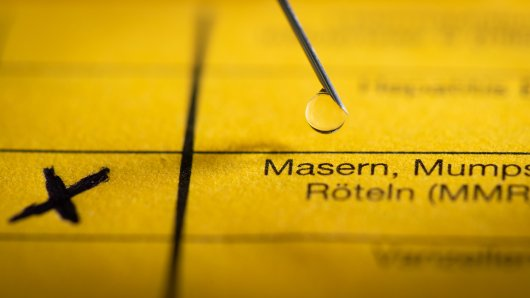 In Niedersachsen sind die Masern ausgebrochen. DIESE Landkreise sind betroffen. (Symbolbild)