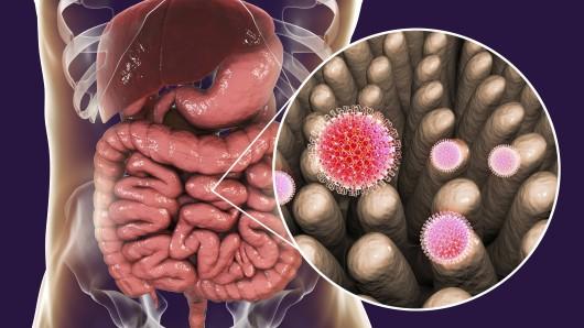 Niedersachsenweit wurden dieses Jahr bereits mehr als doppelt so viele Rotavirus-Infektionen gemeldet wie 2018 insgesamt.
