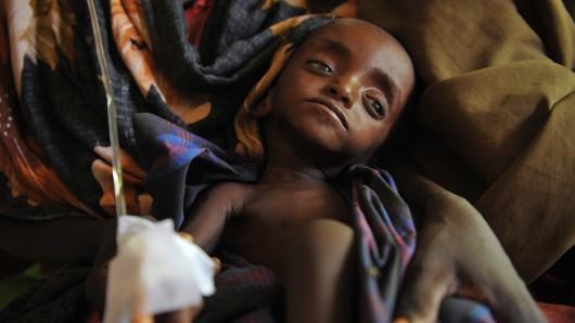 Ein unterernährtes Kind wartet in Mogadischu auf Hilfe. (Symbolbild)